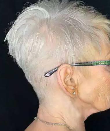 Involutional Alopecia