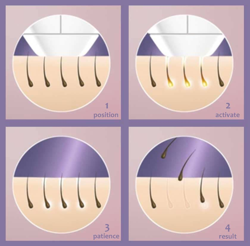 how IPL laser hair removal works
