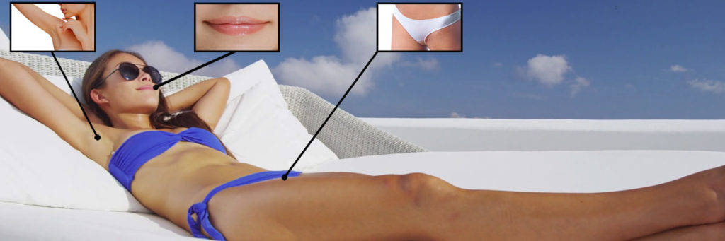 Laser Hair Removal for Sensitive Areas