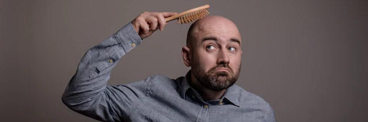 man with hair loss